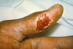 Thumb with skin ulcer of tularemia.