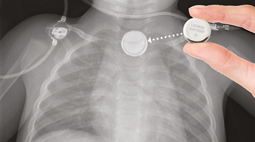 X-ray photo of lithium button battery wedged in childs throat