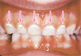 Image of teeth with arrows pointing to signs of decay on the teeth