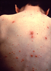 chicken pox on the back