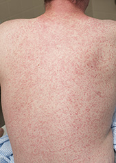 an adult with the measles rash all over their back