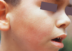 a rash from parvovirus on the cheek of a young boys face